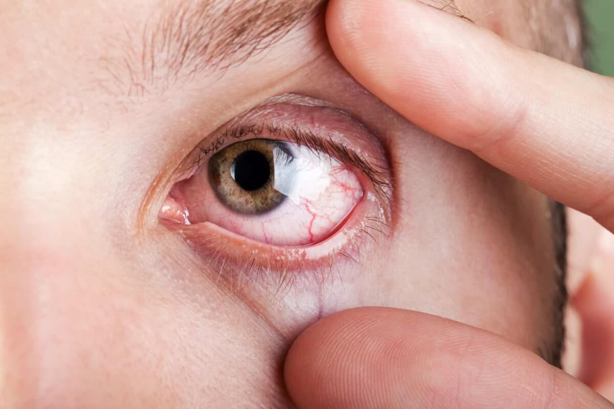dry eye center destination eyecare